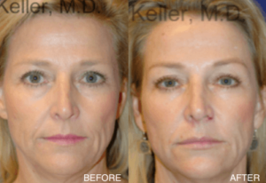 Cheek Lift and MidFace Rejuvenation
