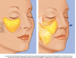 Cheek and MidFace Rejuvenation