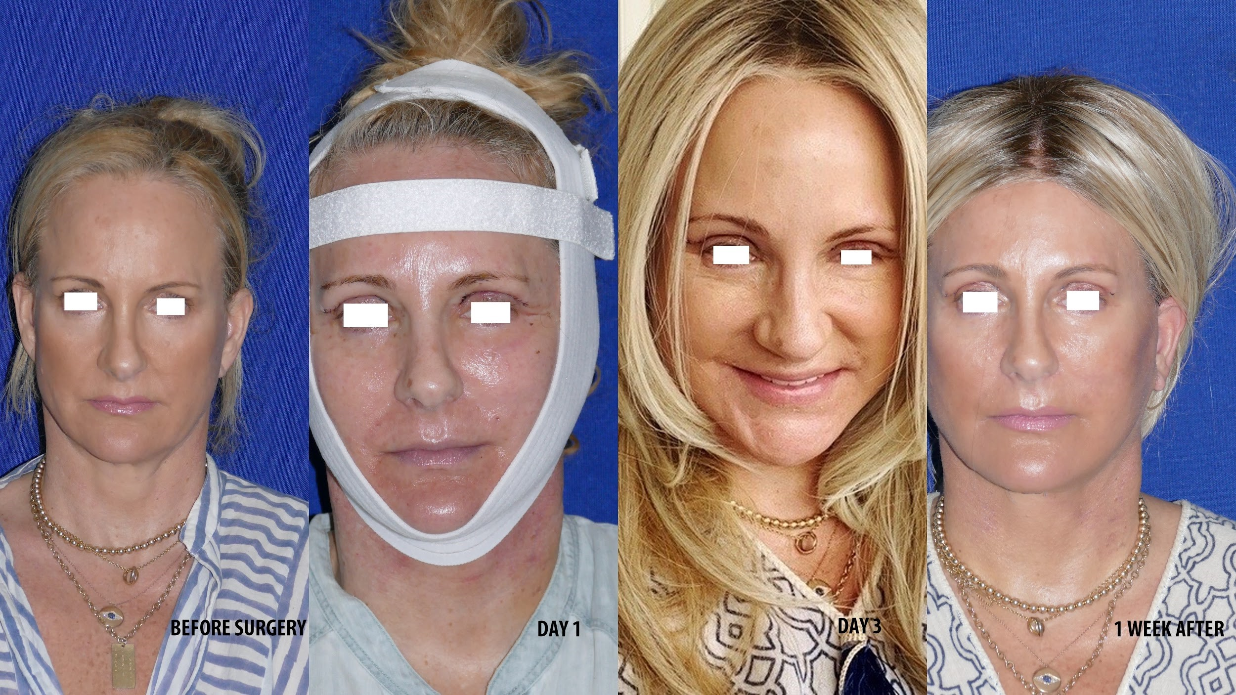 Natural Appearance Deep Plane Facelift Surgery with Little Bruising or Swelling