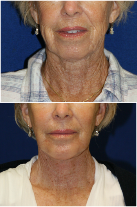 Six Ways That Improve the Deep Plane Facelift