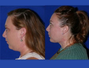 2021: Ellevate and FaceTite: Exciting New Advances in Minimally Invasive, Quick Recovery Treatments for the Sagging Neck=The Year of the Neck